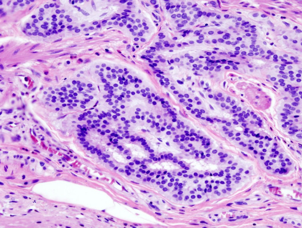 Histopathologic image of colonic carcinoid stained by hematoxylin and eosin.