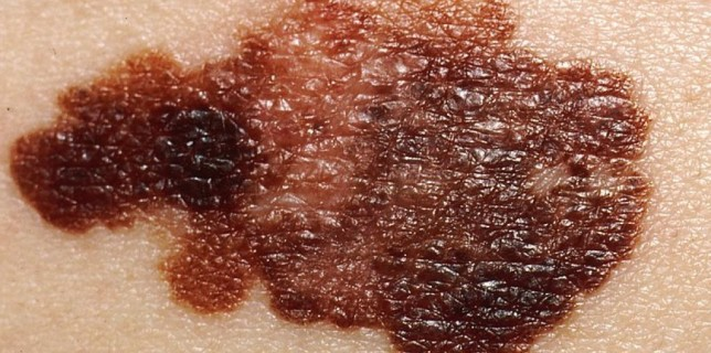Melanoma of the skin