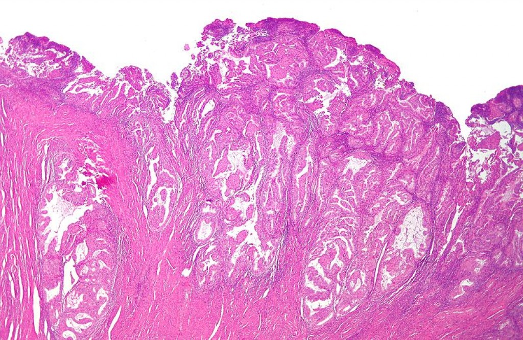 Micrograph of endometrioid endometrial adenocarcinoma, the most common form of endometrial cancer.