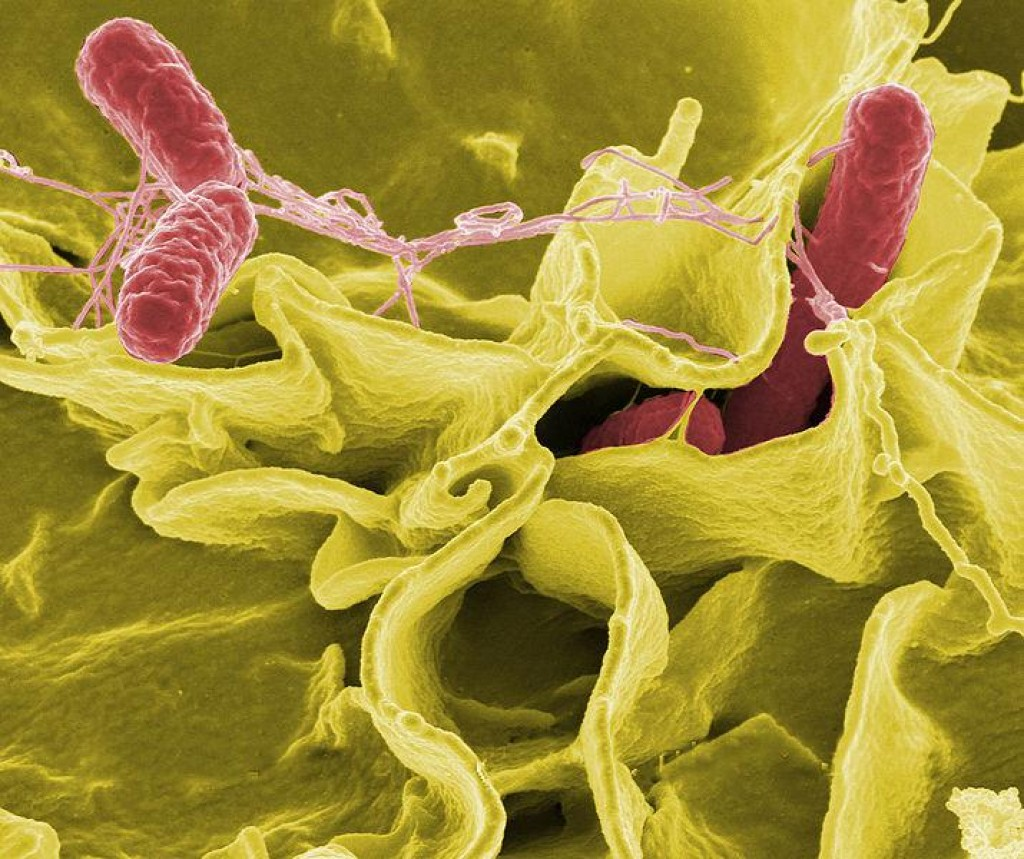 Say Hi! to Salmonella typhimurium seen here in a stylish pink.