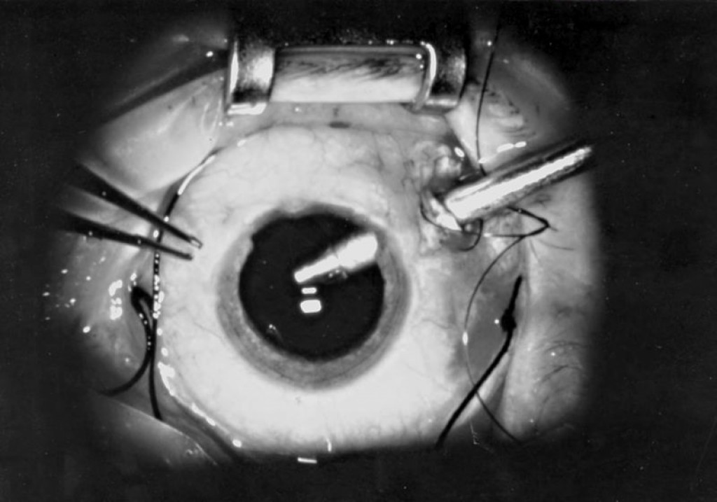 Single port 19-gauge vitrectomy